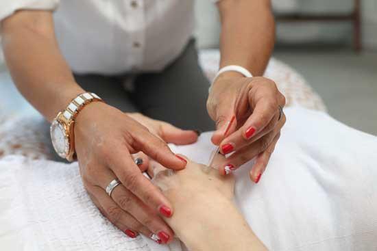 Acupuncture - Treatment Pain, Infertility, Weight Loss, Arthritis Etc.